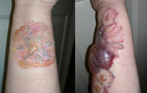 Going skin deep with Brenda Taylor: dealing with tattoo removal
